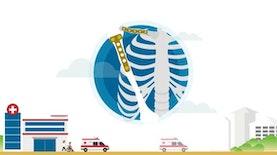 Implan Tulang Karya Indonesia
