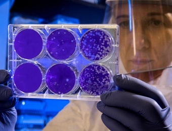 Ternyata Obat Virus Corona Terinspirasi dari Indonesia
