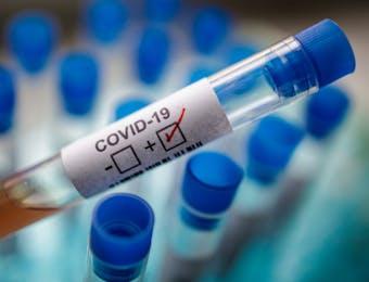 Pembuatan Test Kit COVID-19 untuk Indonesia akan Dipimpin BPPT