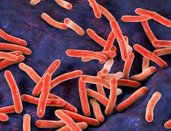 Dosen ITS Ciptakan Alat Pemercepat Diagnonis Tuberkulosis